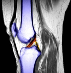 Picture of acl in knee